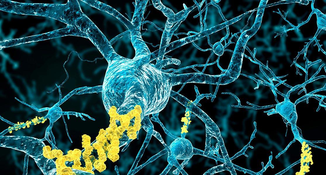 se puede contagiar el alzheimer