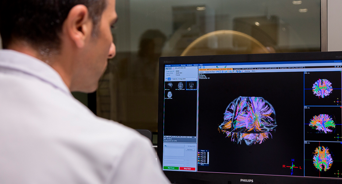 EL uso de la neuroimagen para prevenir el Alzheimer